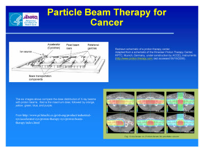 Slide 10. Particle Beam Therapy for Cancer