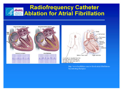 Slide 14. Radiofrequency Catheter Ablation for Atrial Fibrillation