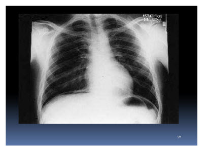 Slide  50. Image of an X-Ray